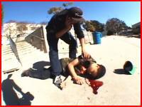 これはアカンやつや・・・。ジャンプに失敗で顔面強打して痙攣している少年