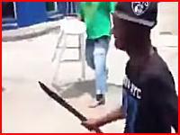 マチェテを持った相手とは戦ってはならない。左手首をザックリいかれた男性。