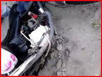 足裏注意報。バイクで事故って足の裏が大変な事になってしまった男性(@_@;)
