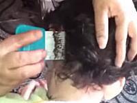 頭しらみに寄生されたお子様の髪の毛を頭シラミ卵駆除櫛で梳かすと(((゚Д゚)))
