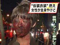 画像一発ネタ。「女性が全身やけど」のニュースでインタビューが紛らわしい画像。