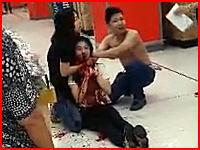 頸動脈を切断されたら人は助からないらしい。スーパーで強盗に首を切られた従業員。