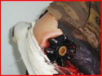 迫撃砲の発射失敗で弾に肩を貫かれたイスラム国の戦闘員の画像(((゚Д゚)))