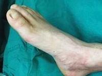 医療って凄すぎるだろ・・・。切断された左手の血流を維持する為に足に移植。画像1枚。
