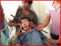 中国の建設現場危険度高すぎるだろ。鉄筋で顔面を串刺し貫通な男性の映像。