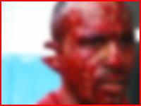 殺されかけたの!?信じられない状態で病院にやってきた男性。手首プラプラ耳カット。