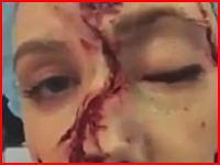 この少年に何が起きたんだ?ズタズタに引き裂かれた顔面の皮を撮影者にペラペラめくられている映像。