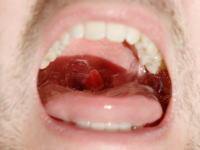 ガラガラガラとうがいをしている時、喉の奥(のどちんこ)はどうなっているのか。スローモーション撮影してみた。