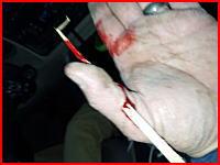 おぎゃー痛い(´°_°`)親指に刺さった木片を医師が引っこ抜くシーンが痛ったすぎる。