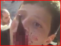 どうしてこうなった(°_°)フェンスの鋭利な部分に顎を貫かれた少年の痛いライブリーク動画。