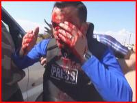 GIFがヤバい。シリアをレポート中に爆発の破片の直撃(顔面)を食らってしまった男性の映像。