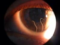 コワスギ!うわあ!ww女性の眼球の中でうごめく寄生虫の映像が怖すぎる動画(°_°)