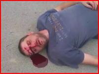 これ死んでないか?(@_@;)ストリートファイトでの危険なノックアウトライブリーク。