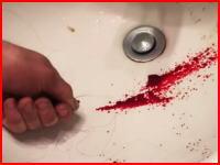 想像するだけでおぎゃあああ痛い(@_@;)親指の爪の下に溜まった血を針を刺して抜く(°_°)