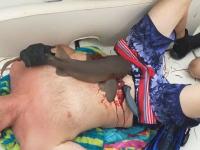 腹部をサメにがっつりと噛まれてしまった男のビデオが(((゚Д゚)))