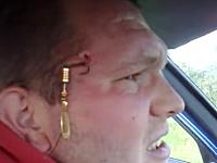 友人の投げたルアーが額に刺さってしまった男性のビデオ。病院いけよw