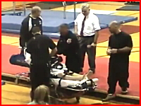 骨折動画。体操で床についた腕があり得ない方向にポッキリ・・・。再生注意