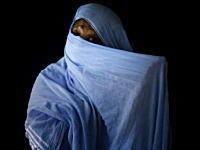 顔に酸をかけられた女性たち アシッドアタック被害者の画像集