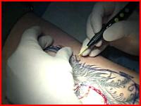 これを見ても刺青を入れたいと思いますか。タトゥー(TATTOO)除去手術