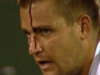 テニスの試合で自分のおでこを破壊する珍事。ミハイル・ユージニー流血事件