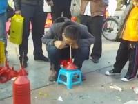 中国の路上で行われている怪しげな虫歯の治療。黒い葉と白い粉を吸うと?