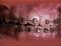 歯の矯正器具で歯列が整っていく様子を60秒に縮めて見てみましょう